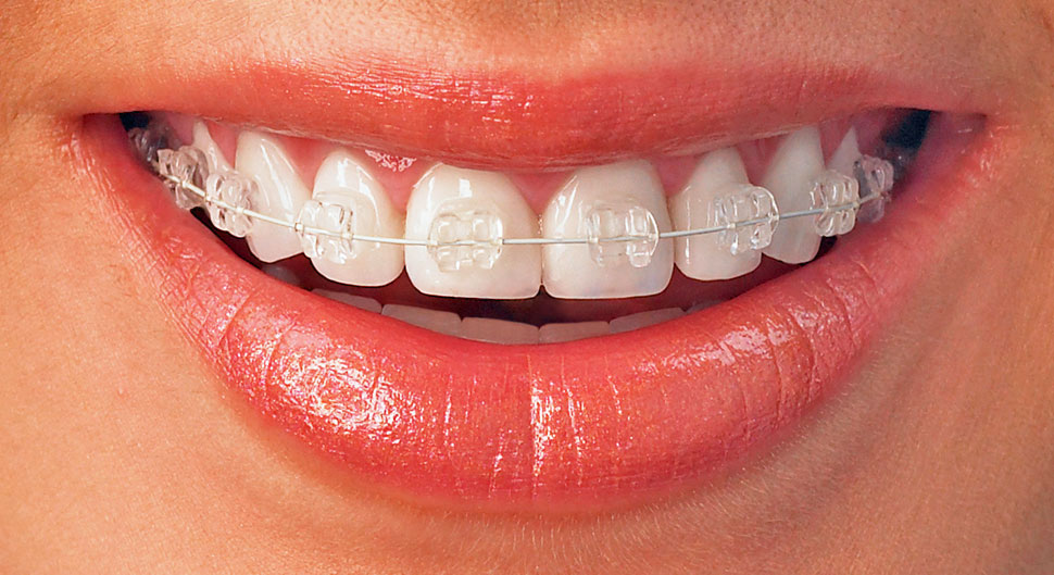 Orthodontics at the Beaconsfield Dental Practice